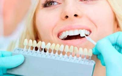 Un implant dentaire, tout ce qu'il faut savoir