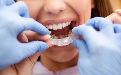 L'orthodontie en quelques mots